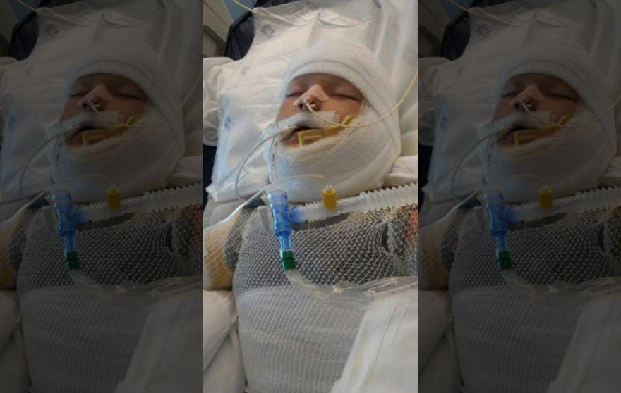 Kayden Culp in an induced coma. (Courtesy: FoxNews.com)