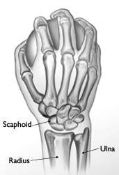 Scaphoid bone