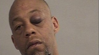 Anthony Rene Allen, 43, is charged with assault