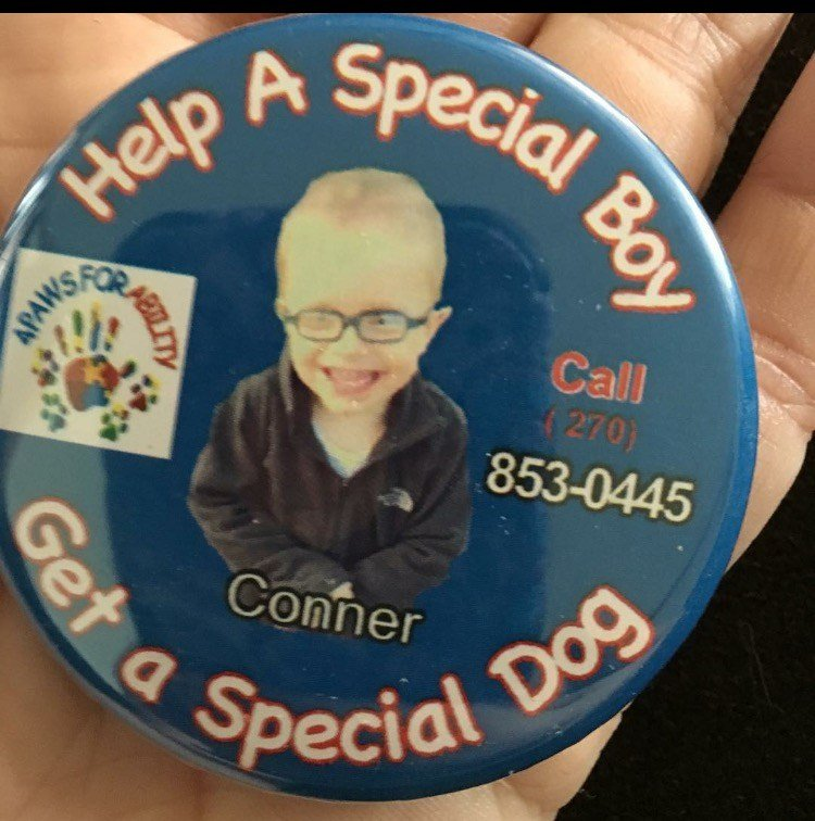 Simple tasks are daily challenges for the two year old who also has trouble eating, so the family has taken to social media hoping to raise money for a service dog.